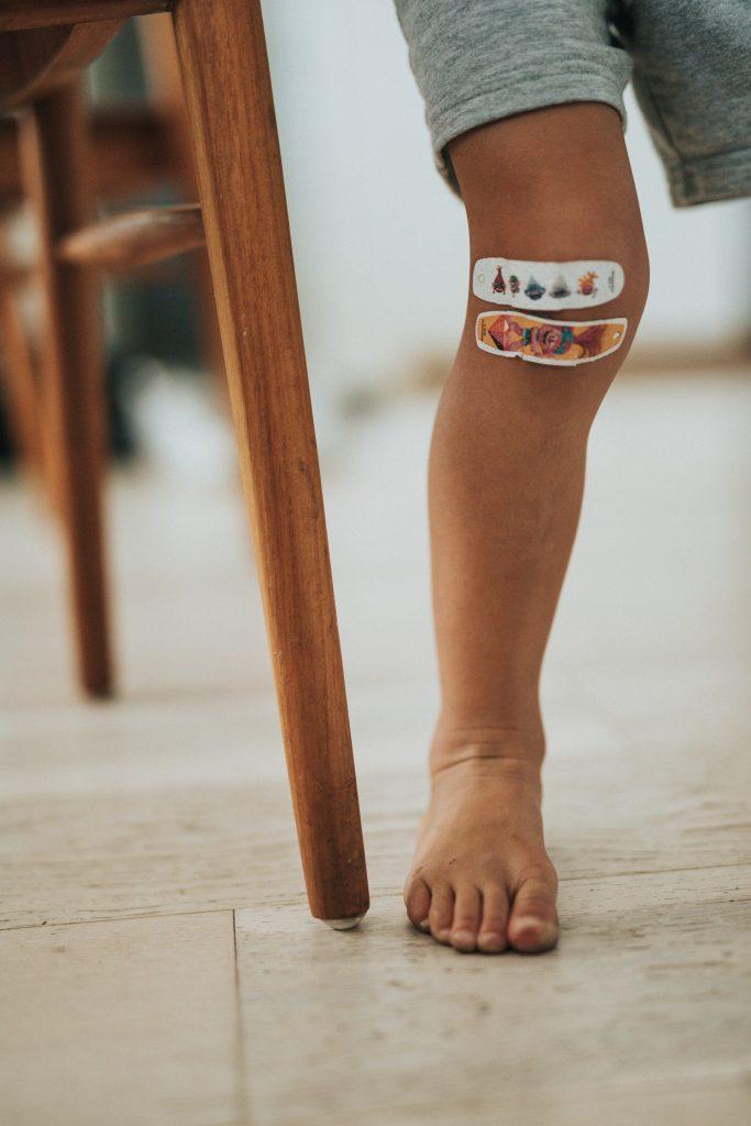 Knee Arthroscopy Malaysia